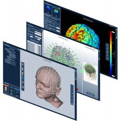 Neurostimulation (Soterix...